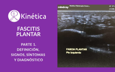 FASCITIS PLANTAR. DEFINICIÓN, SIGNOS, SÍNTOMAS Y DIAGNÓSTICO